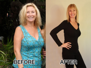 SusanSzabo-BeforeAfter5